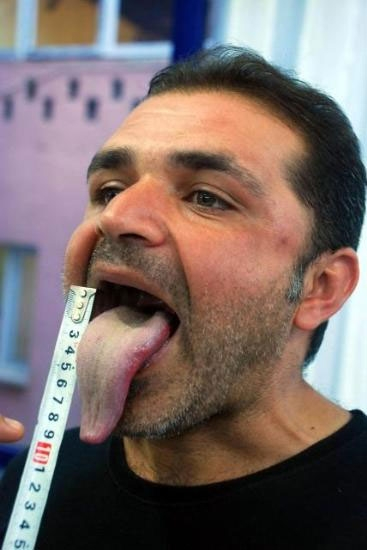 Star recommends Gay dentist in san francisco ca